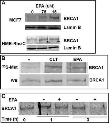EPA translationally up-regulates BRCA1 in human breast cancer cells.