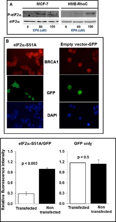 Up-regulation of BRCA1 in breast cancer cells depends on phosphorylation of eIF2α.