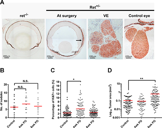 Surgical resection enhances primary tumor regrowth.