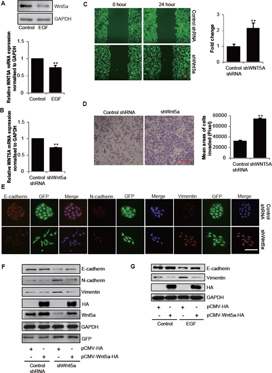 Downregulation of Wnt5a in SGC-7901 cells is necessary for EGF-induced EMT.