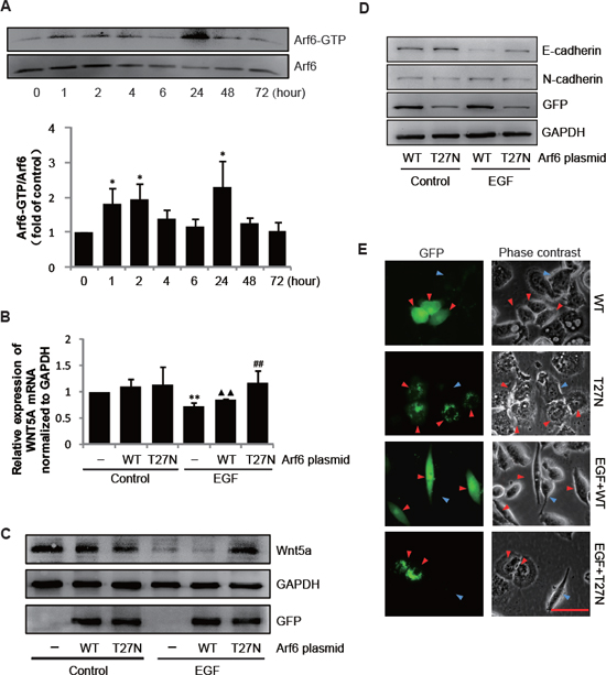 Arf6 mediates the EGF-induced EMT by down-regulating Wnt5a.