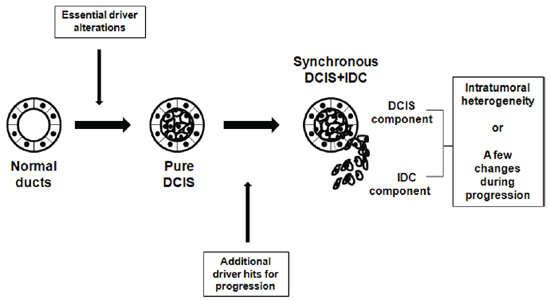 Schematic representation of suggested genomic status of pure DCIS, synchronous DCIS and IDC.
