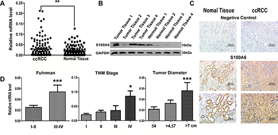 The elevated expression of S100A6 was detected in mRNA, protein and tissue of ccRCC samples.