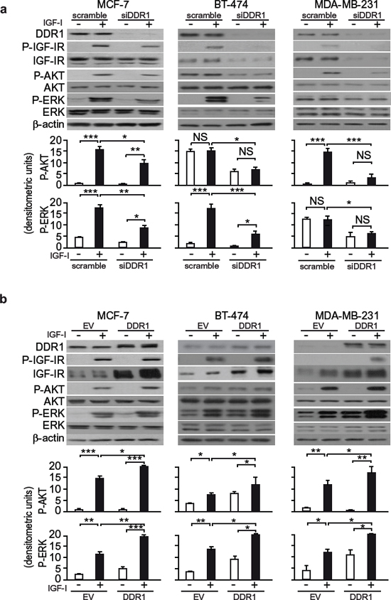DDR1 expression level affects IGF-I downstream signaling in human breast cancer cells.