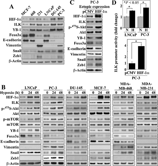 Evidence that ILK is a HIF-1α-responsive kinase in hypoxia-treated cancer cells.