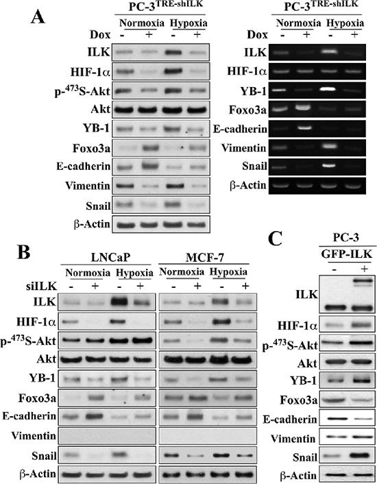 Evidence that ILK and HIF-1α form a regulatory feedback loop in regulating hypoxia-induced EMT.