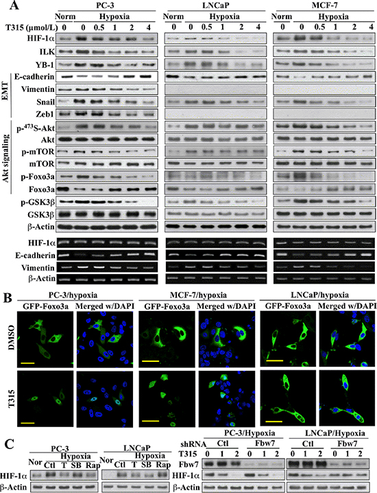 Evidence that ILK regulates HIF-1α expression through different mechanisms in PC-3 and MCF-7 cells versus LNCaP cells.