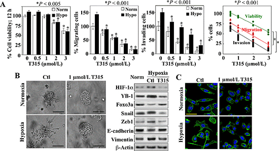 Suppressive effects of ILK inhibition on hypoxia-induced aggressive phenotype in PC-3 cells.