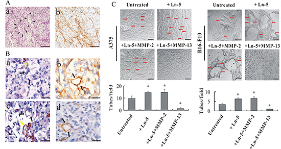Laminin affects VM formation in human melanoma in vivo and MMP-13–Ln-5 cleavage fragments disrupt VM formation in vitro.