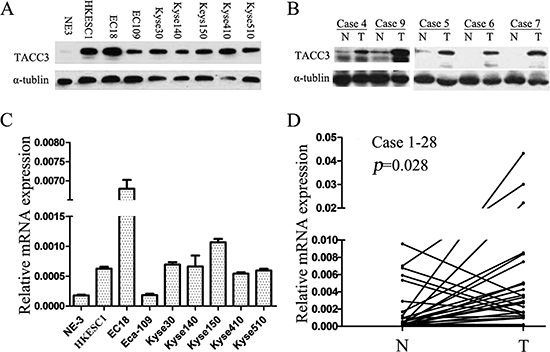 TACC3 expression is frequently upregulated in ESCC cell lines and esophageal tissue.