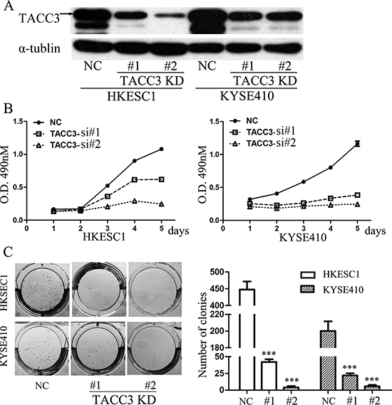 Knockdown of TACC3 suppresses the proliferation and clonogenicity of ESCC cells.