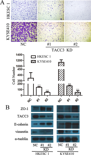 TACC3 silencing inhibited ESCC cell migration.