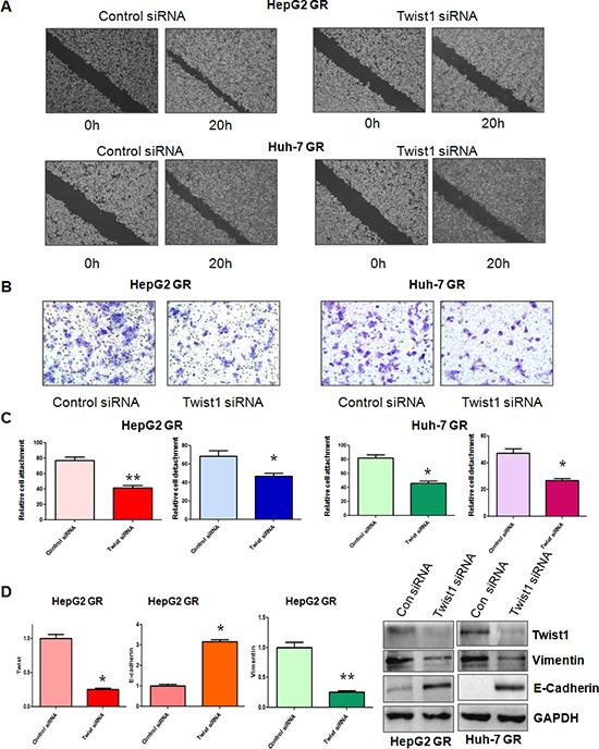 Down-regulation of Twist1 reverses EMT in GR cells.