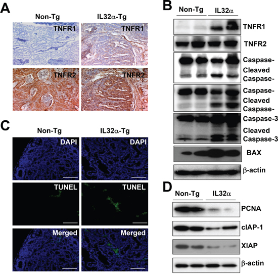 Expression of TNFR1 and cell death in colon cancer tissues of IL-32α Tg mice.