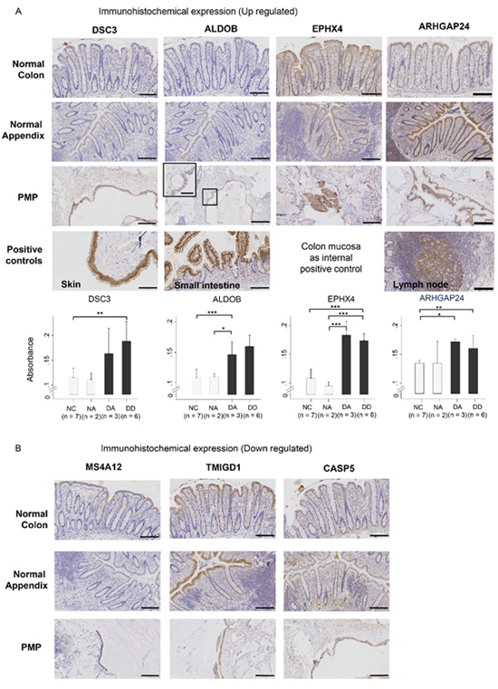 Immuno-histochemical staining for protein product expression of (A) up-regulated genes (DSC3, ALDOB, EPHX4, ARHGAP24) and (B) down-regulated genes (MS4A12, TMIGD1, CASP5) in normal colon (NC) and normal appendiceal (NA) mucosa, diseased appendix (DA), and disseminated disease (DD), with positive and negative controls.