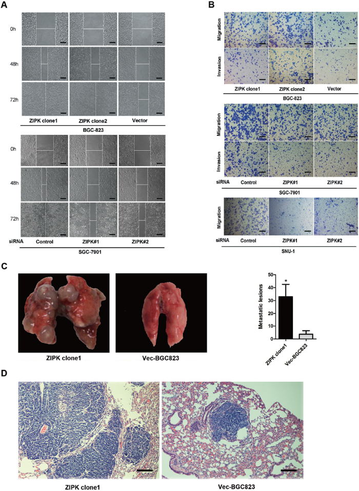 ZIPK promotes cell invasion and gastric cancer metastasis.