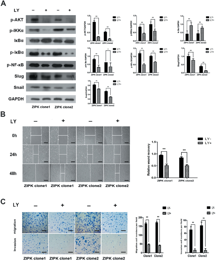 The AKT inhibitor LY294002 decreases ZIPK-induced cell migration and invasion.