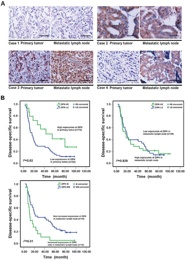 The prognostic significance of ZIPK expression in primary GCs and matched metastatic lymph nodes.