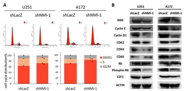 NMI regulates G1/S phase progression of glioma cell cycle.