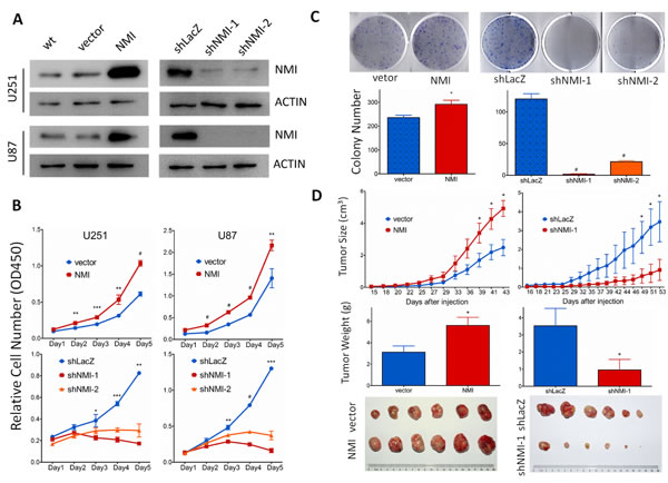 NMI promotes glioma cell growth
