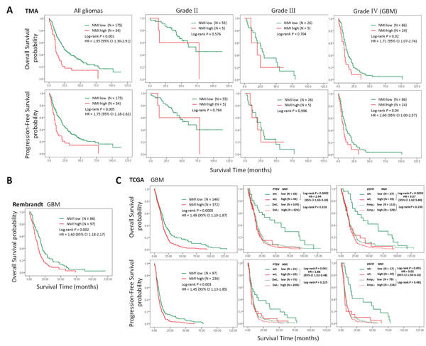 High expression of NMI predicts a poor clinical outcome in human gliomas.