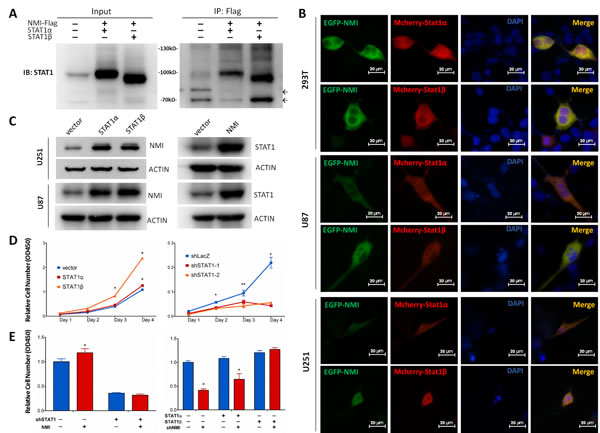 NMI interacts with STAT1 and promotes glioma cell proliferation via regulating STAT1 expression.