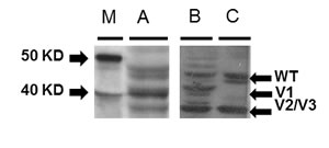 Western immunoblot analysis for Rad51C variant protein expression from colorectal tumors, matched non-tumors and LS-174T cells.
