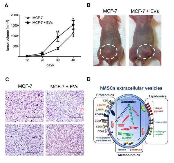 EVs enhance breast tumor growth.