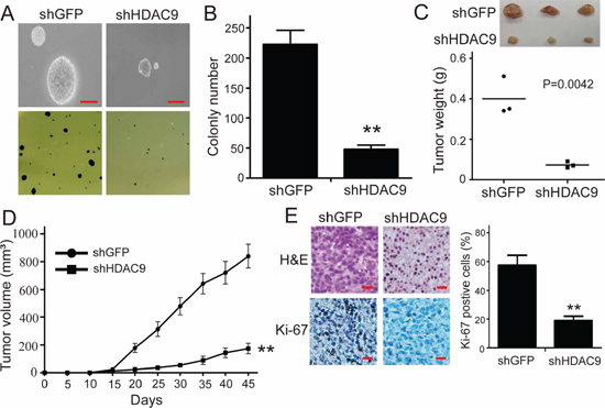 Knockdown of HDAC9 impairs colony formation and tumor formation of U87 cells in immunodeficient mice.