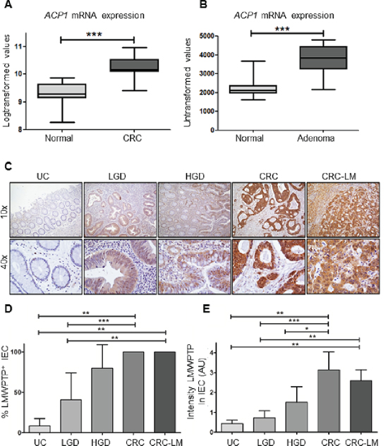 ACP1 mRNA and LMWPTP protein expression are increased in colorectal dysplasia and carcinoma as compared to non-dysplastic tissue.