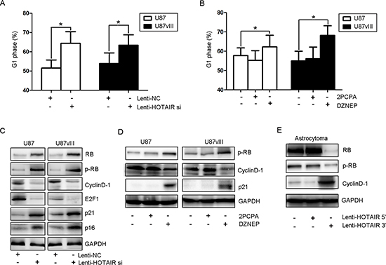 HOTAIR regulates GBM cell cycle progression in vitro.