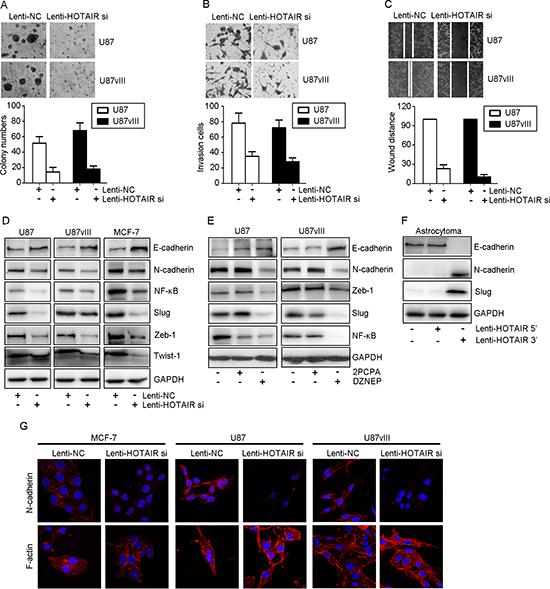 HOTAIR regulated GBM invasion in vitro.