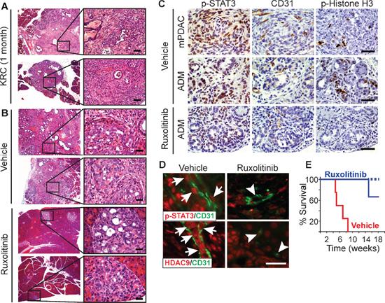 Ruxolitinib suppresses mPDAC progression and prolongs survival of KRC mice.