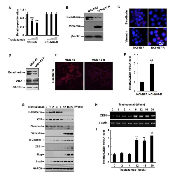Trastuzumab resistance is associated with EMT in gastric cancer cells.