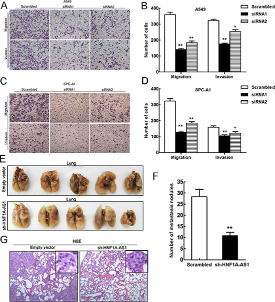 Effects of HNF1A-AS1 downexpression on tumor metastasis in vitro and in vivo.