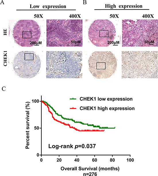 CHEK1 protein expression measured by immunehistochemical staining in tissue microarray and its association with lung cancer survival.