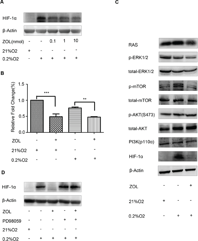 Effect of zoledronic acid on HIF-1α expression in MCF-7 cells.