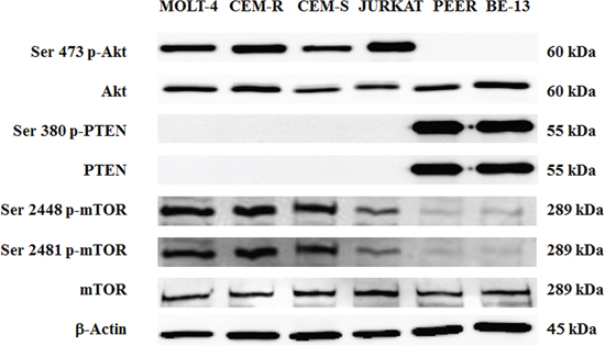 Expression and phosphorylation status of Akt, PTEN and mTOR in T- ALL cell lines.
