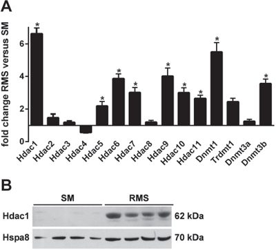 A. Expression of Hdacs, Dnmts and Trdmt1 in SM and RMS of heterozygous Ptch mice.
