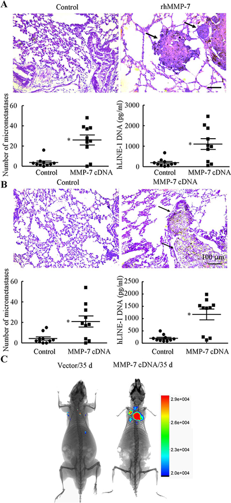 MMP-7 promotes lung colonization in vivo.