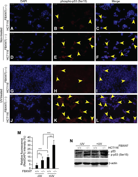 In vitro validation of phospho-p53(Ser15) accumulation in FBXW7-deficient human CRC cells.