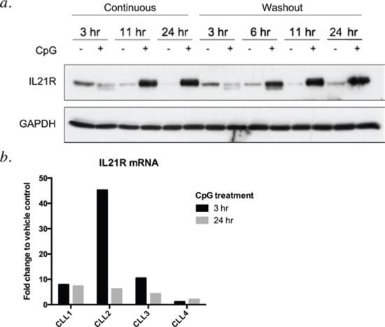 CpG-685 treatment of CLL B cells enhances expression of IL21R in a time-dependent manner.