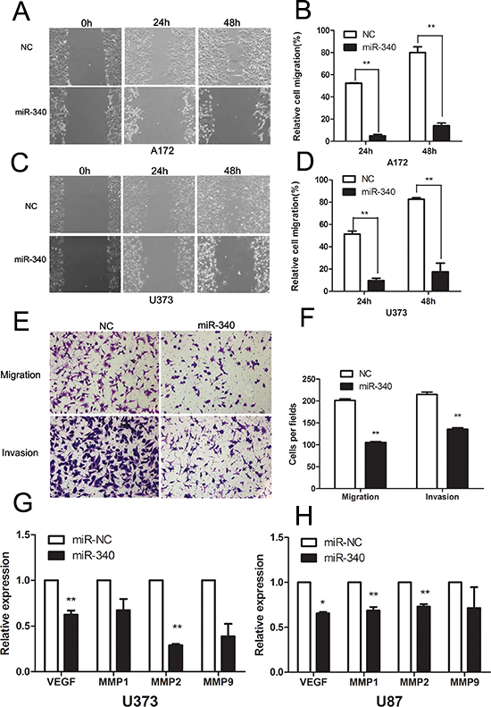 Overexpression of miR-340 inhibits glioma cells migration and invasion.