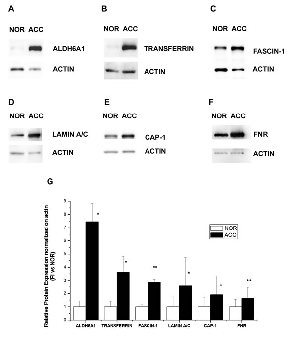 Fig.4: Western blot analysis of six proteins differentially expressed in ACC and normal adrenal.