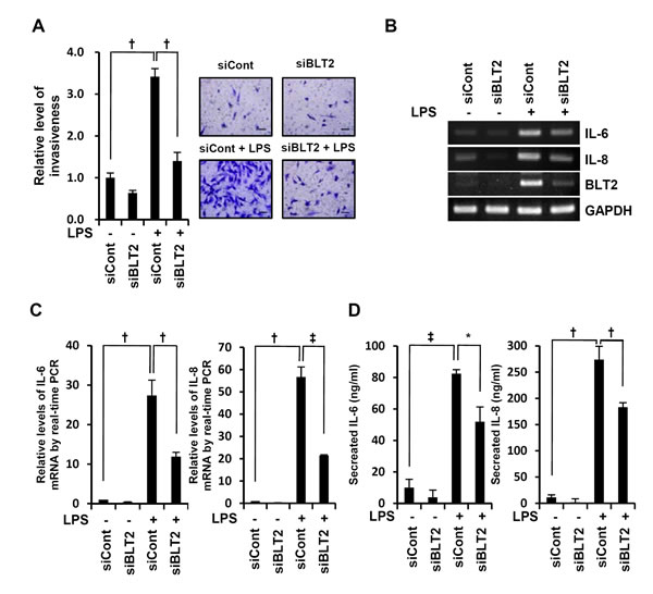 BLT2 inhibition attenuates the invasive potential of MDA-MB-231 cells.