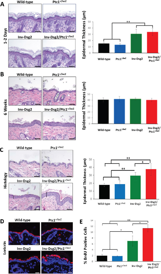 Inv-Dsg2/Ptc1+/lacZ mice exhibit epidermal hyperproliferation.