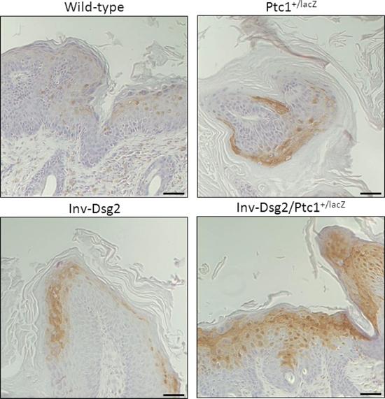 Inv-Dsg2/Ptc1+/lacZ squamous lesions exhibit enhanced activation of Phospho-Erk1/2.