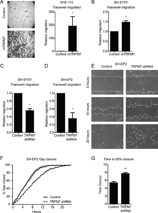 TRPM7 drives mouse and human neuroblastoma cell migration.