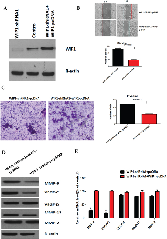 WIP1 modulates cell migration and invasion by regulating MMP-9 and VEGF-C expression.
