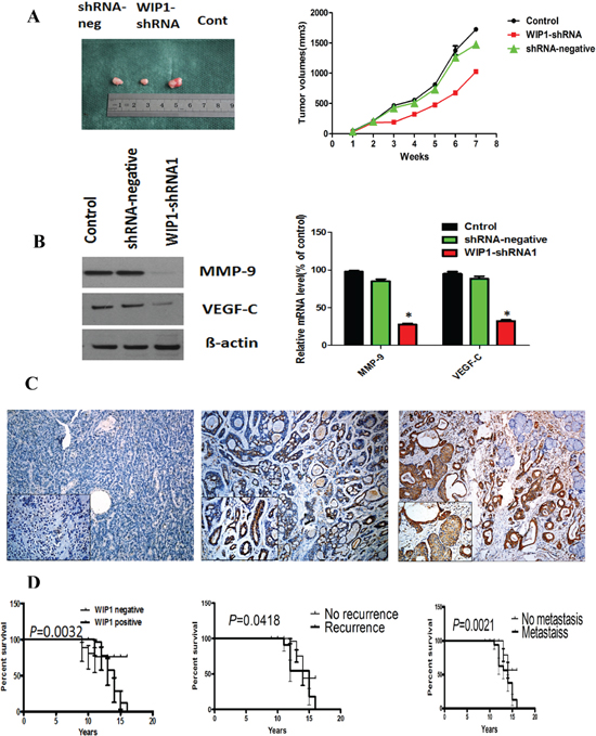 MMP-9 and VEGF-C were downstream targets of WIP1 in vivo and WIP1 expression was associated with the poorer prognosis of ACC patients.